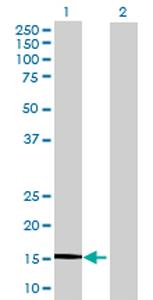 Western blot - LAIR2 antibody (ab70189)
