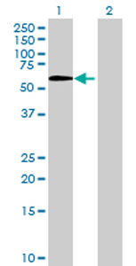 Western blot - LOXL1 antibody (ab70190)