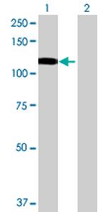Western blot - MANBA antibody (ab70192)