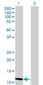 Western blot - MGP antibody (ab70193)