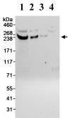 Western blot - CDK5RAP2 antibody (ab70213)