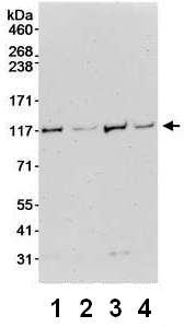 Western blot - DHX36 antibody (ab70269)
