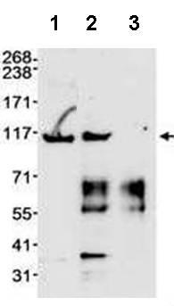 Immunoprecipitation - MSH2 antibody (ab70270)