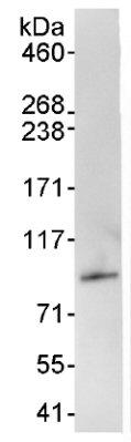 Immunoprecipitation - PRKRIR antibody (ab70333)