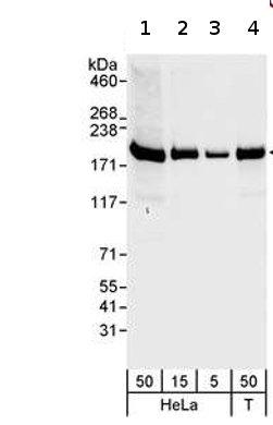Western blot - hCAP-D3 antibody (ab70349)
