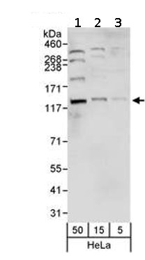 Western blot - NCAPG2 antibody (ab70350)
