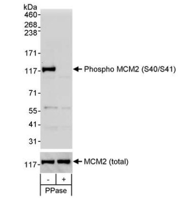 Western blot - MCM2 (phospho S40 + S41) antibody (ab70371)