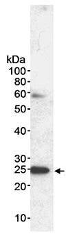 Western blot - MAD2 antibody (ab70385)