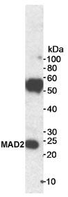 Immunoprecipitation - MAD2 antibody (ab70385)