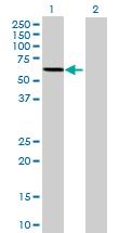 Western blot - P4HB antibody (ab70415)