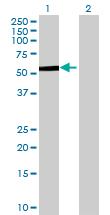 Western blot - PCCB antibody (ab70416)