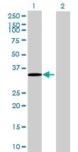 Western blot - SFXN1 antibody (ab70417)