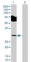 Western blot - PRRT2 antibody (ab70420)