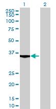 Western blot - MGC16943 antibody (ab70428)