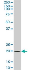Western blot - SAT2 antibody (ab70429)