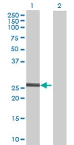Western blot - RDH13 antibody (ab70431)