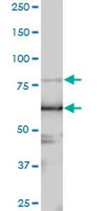 Western blot - LARP4 antibody (ab70433)