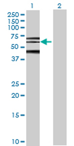 Western blot - PHF21B antibody (ab70435)