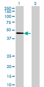 Western blot - TUBA3D antibody (ab70437)