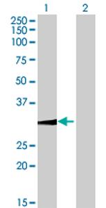 Western blot - WBSCR22 antibody (ab70440)