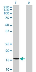 Western blot - Eco1 antibody (ab70442)