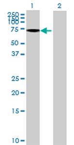Western blot - GALNT13 antibody (ab70444)