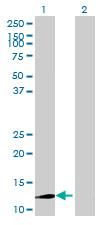 Western blot - MRPL54 antibody (ab70446)