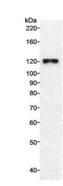 Western blot - FLJ21919 antibody (ab70451)