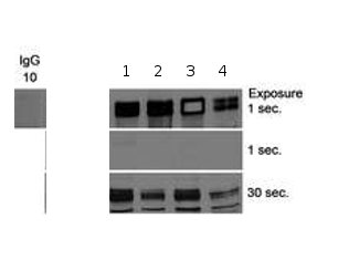 Immunoprecipitation - Ctip2 antibody (ab70453)