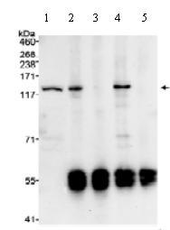 Immunoprecipitation - LOK antibody (ab70484)