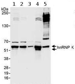 Western blot - hnRNP K antibody (ab70490)