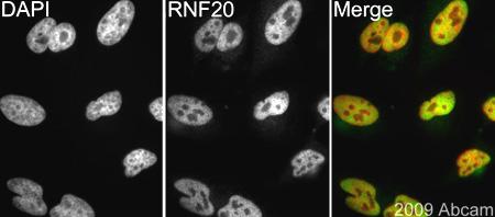 Immunocytochemistry/ Immunofluorescence - RNF20 antibody (ab70495)