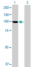Western blot - TAGAP antibody (ab70498)