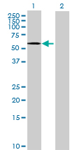 Western blot - ANTXR2 antibody (ab70499)