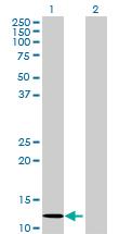 Western blot - MGC52282 antibody (ab70502)