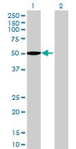 Western blot - CDYL2 antibody (ab70503)