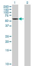 Western blot - KIAA1970 antibody (ab70504)