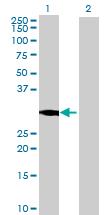 Western blot - CYB5D1 antibody (ab70505)