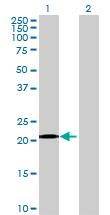 Western blot - NPM3 antibody (ab70506)