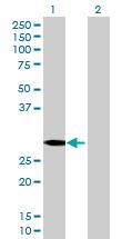 Western blot - GSTO2 antibody (ab70513)