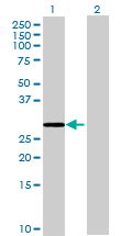 Western blot - ERP27 antibody (ab70515)