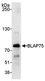 Immunoprecipitation - BLAP75 antibody (ab70525)