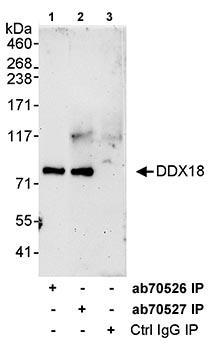 Immunoprecipitation - DDX18 antibody (ab70526)