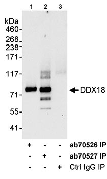 Immunoprecipitation - DDX18 antibody (ab70527)