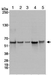 Western blot - STK3 antibody (ab70546)