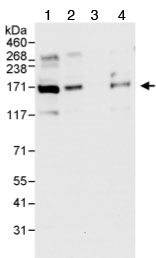 Western blot - 53BP2/ASPP2 antibody (ab70548)
