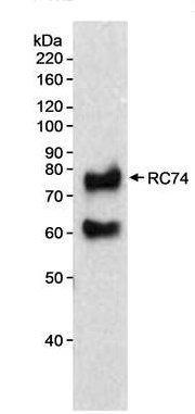 Western blot - RC74 antibody (ab70586)