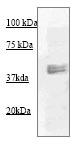 Western blot - MEK1 + MEK2 antibody (ab70613)