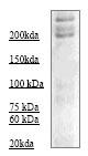 Western blot - Neurofibromin antibody (ab70616)