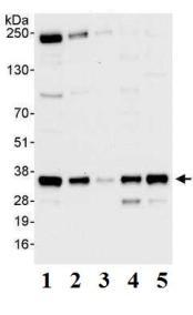 Western blot - PPP4C antibody (ab70623)
